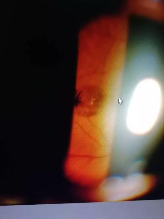 """在眼科裂隙灯显微镜下拍摄到的眼球腔内""""珍珠""""照片"""