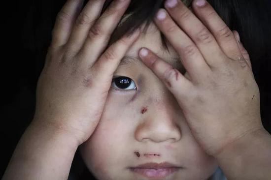 (每一桩侵害未成年人基本权益的案件,都暴露出中国儿童权利保护上的缺陷和无力。图/视觉中国)