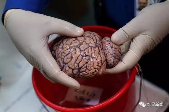 ▲博士手拿着人脑。图据纽约邮报