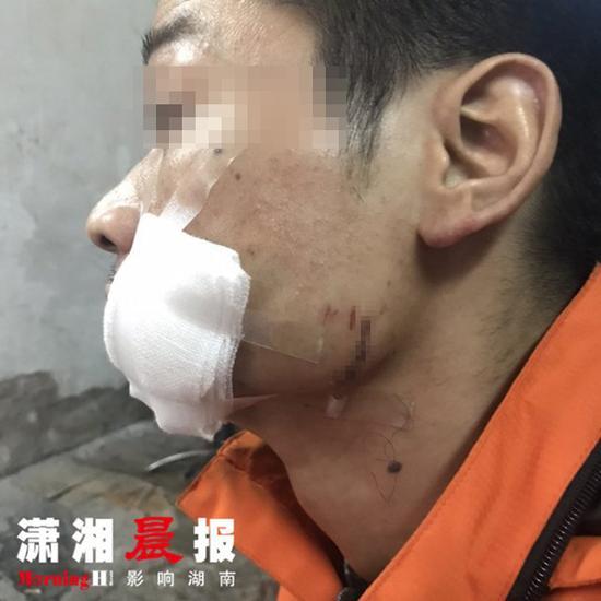 快递员许先生在派件时,被一名年轻女子持啤酒瓶扎伤,导致面部被缝合十余针。 本文图片均来自潇湘晨报
