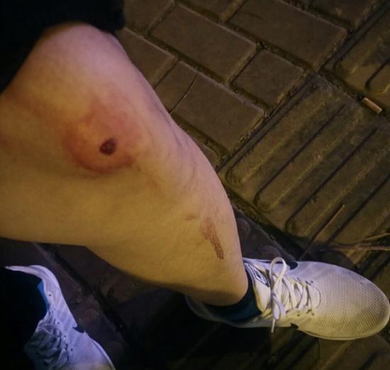 阜阳师范学院学生疑被气枪打伤。 受访者供图