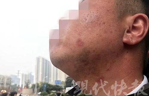△男子向记者展示受伤的脸颊。