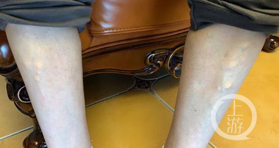 痛风后自行服用止痛药 男子消化道大出血胃被切除