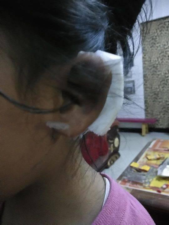 女童幼兒園受傷耳朵縫5針