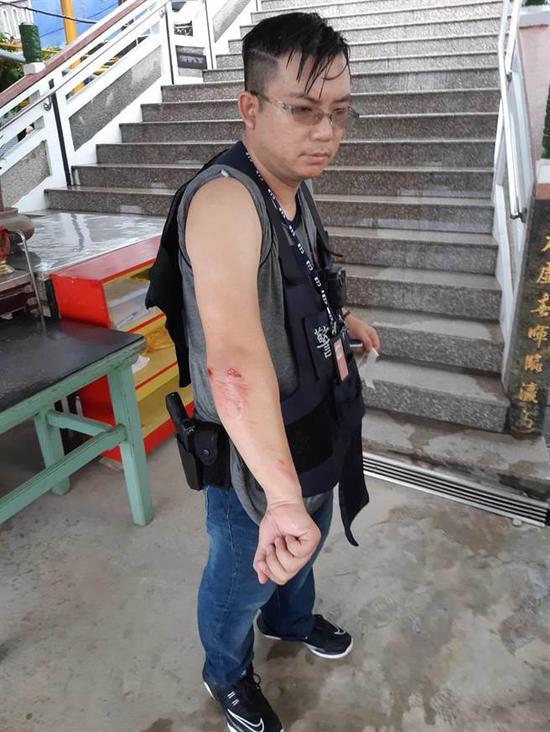 图为一名警察在逮捕嫌犯过程中挂彩。(来源:台湾中天新闻)