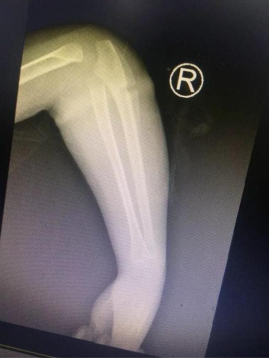 乐乐手臂的X光片。本文图片 都市快报