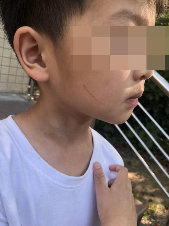 大风车幼儿园花蕾班孩子身上的划伤。 受访者供图