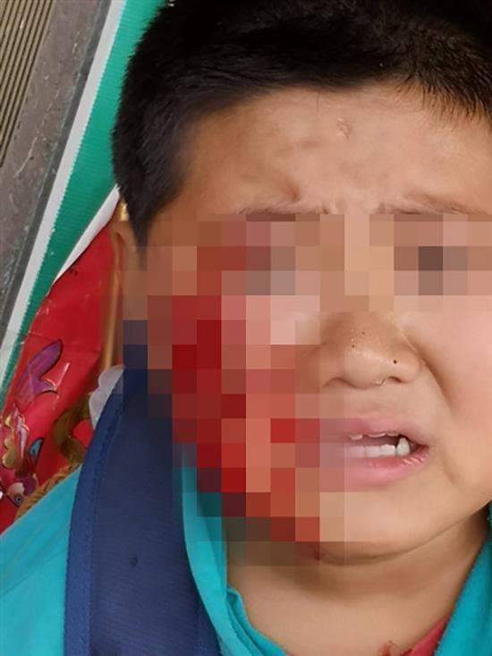 小文的脸被恶犬咬伤。成都商报 图