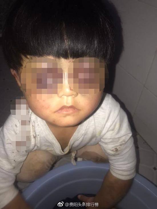 受虐女孩双眼臃肿呈现紫色,其中右眼无法睁开 本文图片均来自微博@贵阳头条排行榜