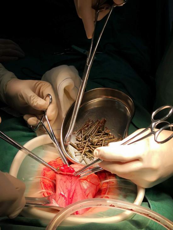 医生正在进行取钉手术 医院供图