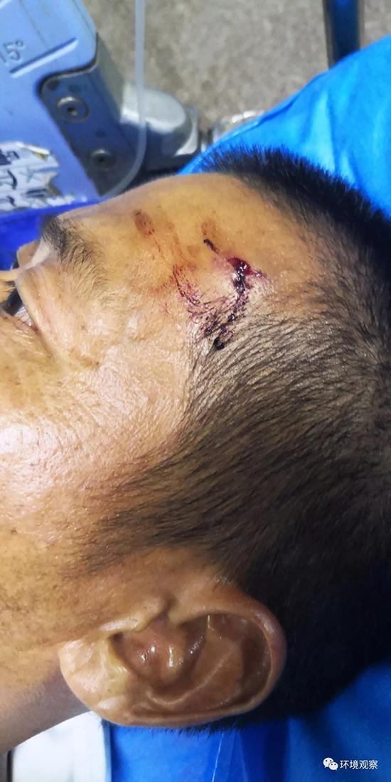 湖南湘潭3名环保志愿者洗砂场被殴打 官方:正调查