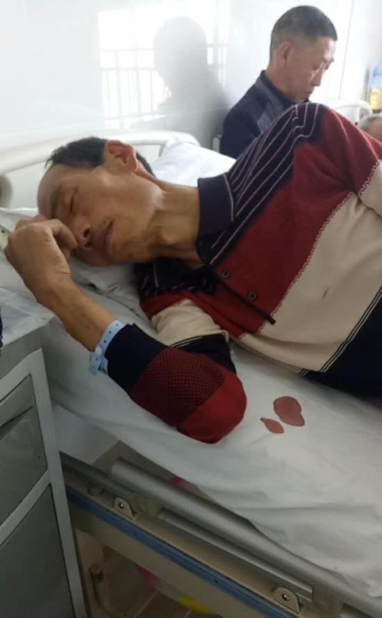 任云凯住院期间,只有80多斤。