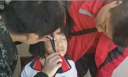 视频:女孩眼皮被校服拉链锁住 消防员40分钟解开