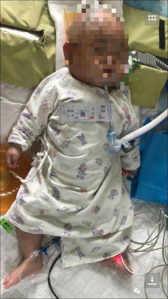 ▲女婴被高空苹果砸到致脑挫伤。受访者供图