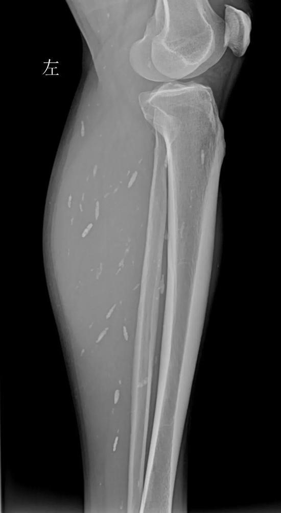 ↑(左小腿X光片,见肌肉内多发囊虫病灶。)