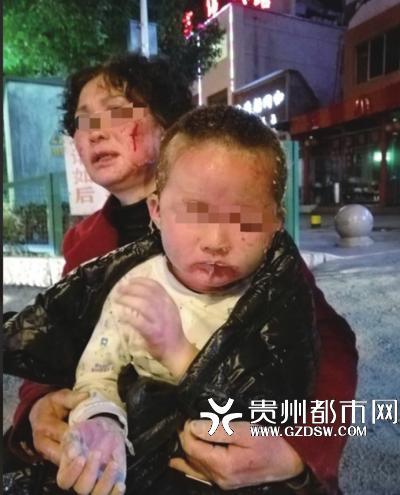 小孩和外婆都被当场烧伤。(家属供图)