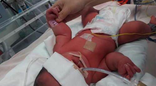 刘女士的孩子出生后发现有手部、头部等多发畸形。