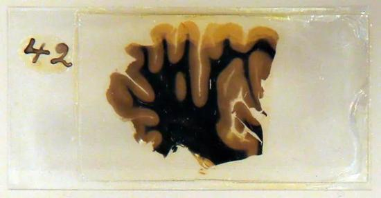 给爱因斯坦做尸检的人 偷走他的大脑研究出了啥?