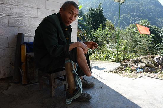 邹大聪在自家门口台阶,他的右下肢触雷后被截肢,干不了重活。