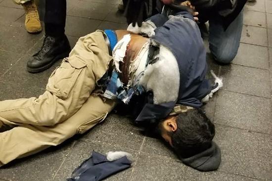 嫌疑人受重伤(图源:美国《纽约邮报》)