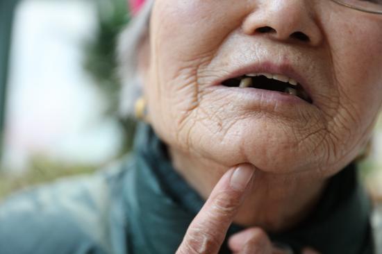 ▲岑洪兰下巴上依然有明显的伤疤。受访者供图