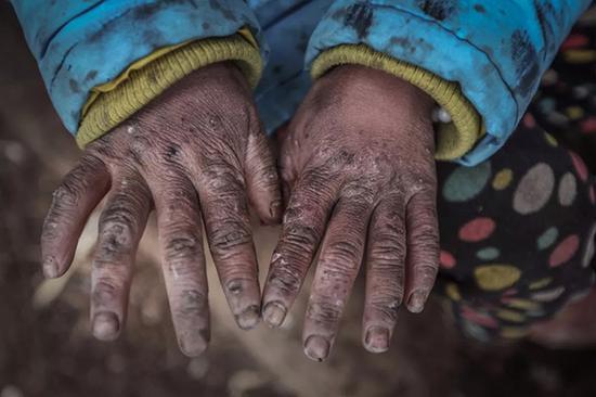 吴双艳的手冻伤了。