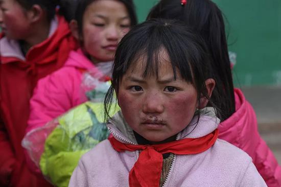 11岁上五年级的顾正玲,嘴唇被冻伤。