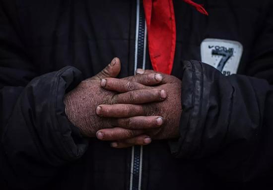 多数孩子的手都有冻伤。