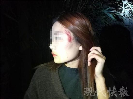 △ 小彤被砸伤