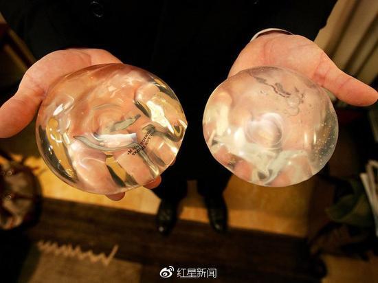 乳房假体 图据Getty Images