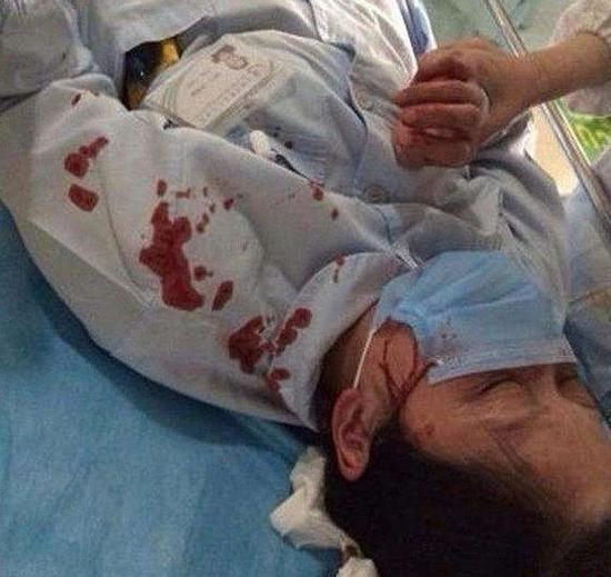 ▲女教师暴力伤医事件,曾引发轩然大波。