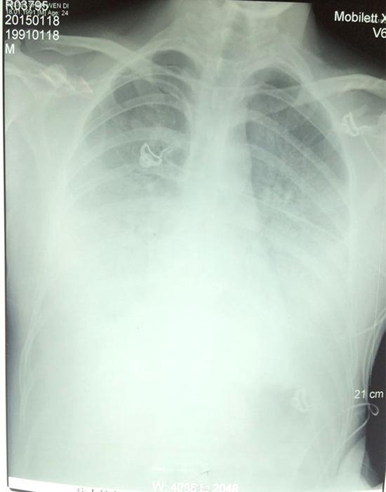 陶园的肺部CT
