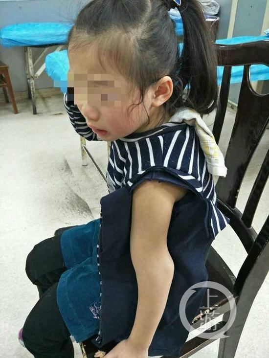 女童在幼儿园摔骨折 园方:监控电缆被