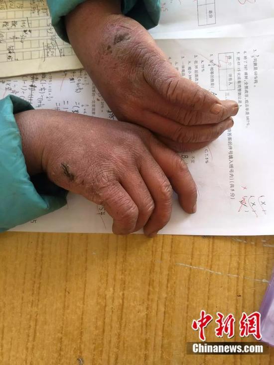 """""""冰花""""男孩冻红的双手。来源:转山包小学校长付恒 供图"""