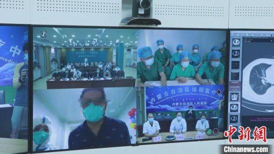 圖為內蒙古新冠肺炎醫療救治專家組對確診患者佟某某進行遠程會診。 張玢 攝