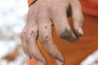 手受伤是常事