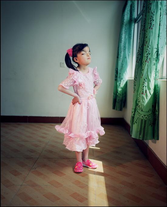 《罕·见》赵芸,北京,先天畸形。她是一个孤儿,被养父母收养。但她不觉得自己和别人不一样。