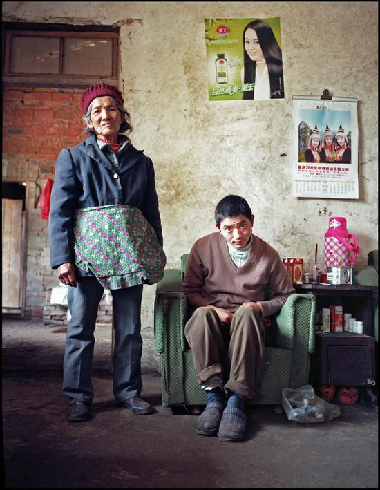 蒋开乾,重庆,渐冻人症,他母亲还有两个亲戚都因为这个病去世了。现在和80多岁的奶奶住在一起。
