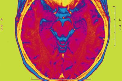 大脑不会储存记忆 因为它本身就是记忆