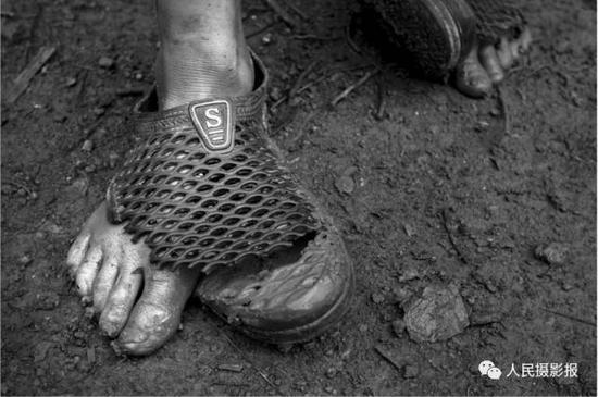 2016年7月27日,孩子们常常没鞋穿,就是有也会很破或者左右两边鞋子不一致。