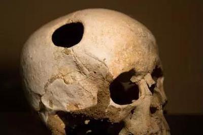 史前人类打开活人的头盖骨……是要做啥?