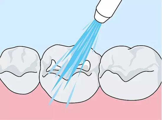用螺口注射器将材料涂至腔内。