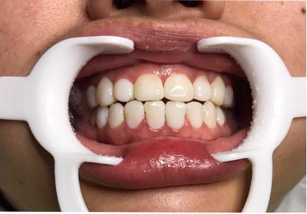 Mino牙齿瓷贴面前后对比