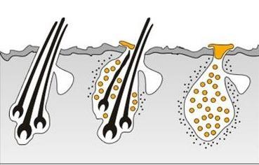 种植头发后可以保持多久?