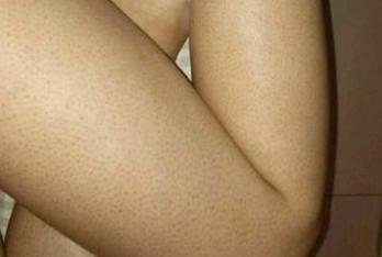 没使用康御肤之前鸡皮肤症状