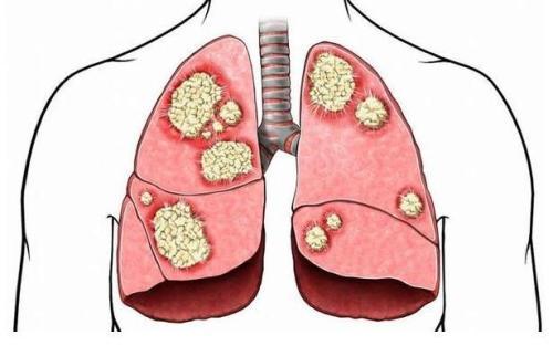 四川健康白皮书:川人吃喝方式不健康 肺癌是众癌之首