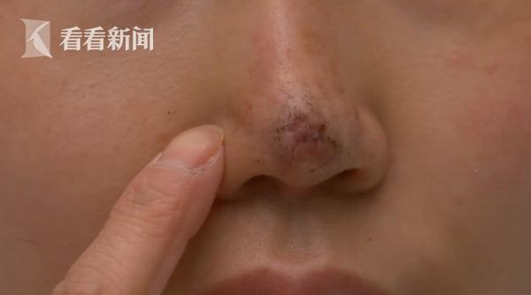整容变毁容 女子花一万五隆鼻却致鼻头坏死