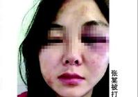 女子西昌烧烤店被打事件调查 那一晚究竟发生了什么?