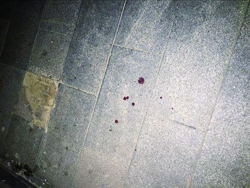 车胎被扎 男子砍伤女友前夫