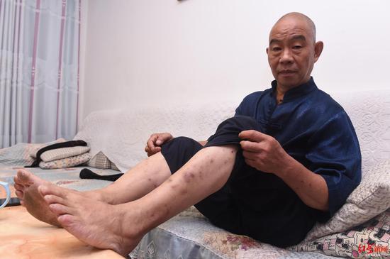 大爷穿百斤石鞋散步 自创石锁功坚持40年拒商演